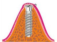 Skizze: Zustand nach Einbringen eines Implantats