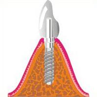 Versorgung eines Implantats mit Zahnersatz / Einzelkrone
